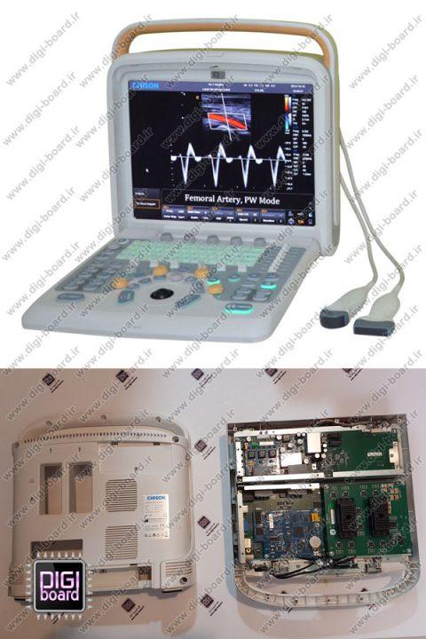 تعمیر-دستگاه-سونوگرافی-chison-Q9